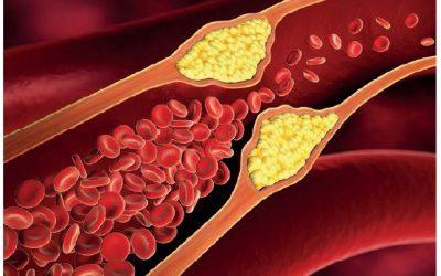 Inflammation, Atherosklerose & neue Therapieansätze