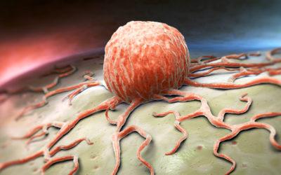 Stark unterschätzt: Krebsrisiko durch Übergewicht